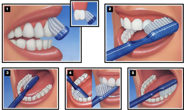 Teeth-cleaning-technique