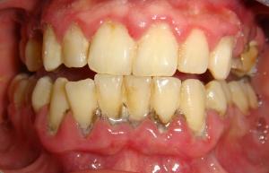 moderate-periodontal-disease