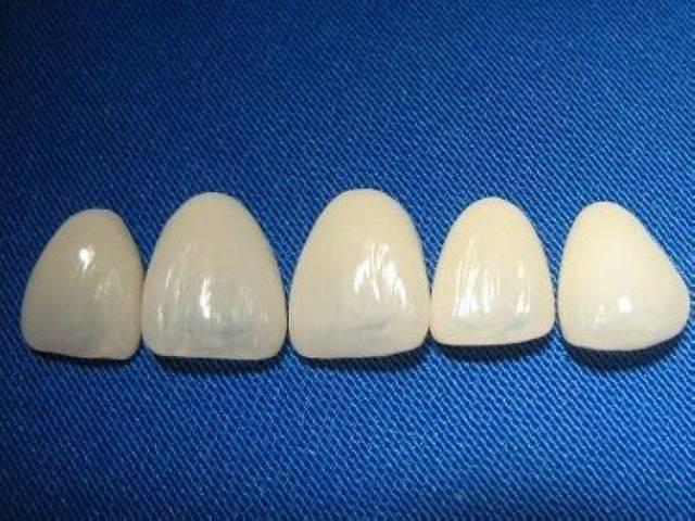 strong_style_color_b82220_dental_strong_empress_veneer