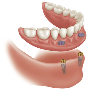 supported-dentures1