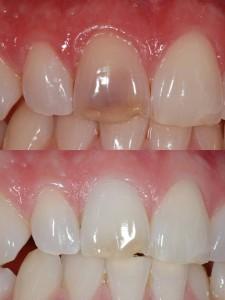 Internal-Bleaching-Before-After-225x300