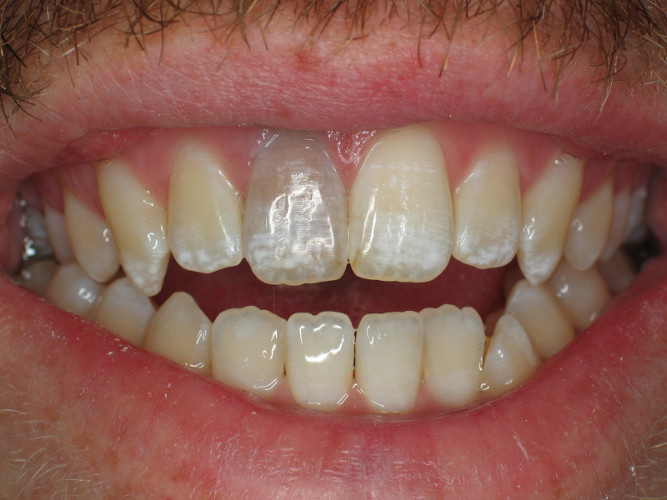 internal-bleaching-a-darkened-tooth-before